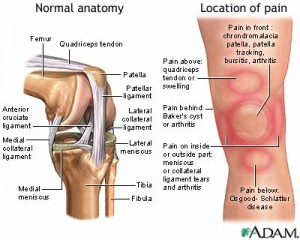 knee-pain-picture